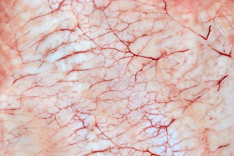 Blodiga upphetsande kapillär på huden royaltyfri fotografi