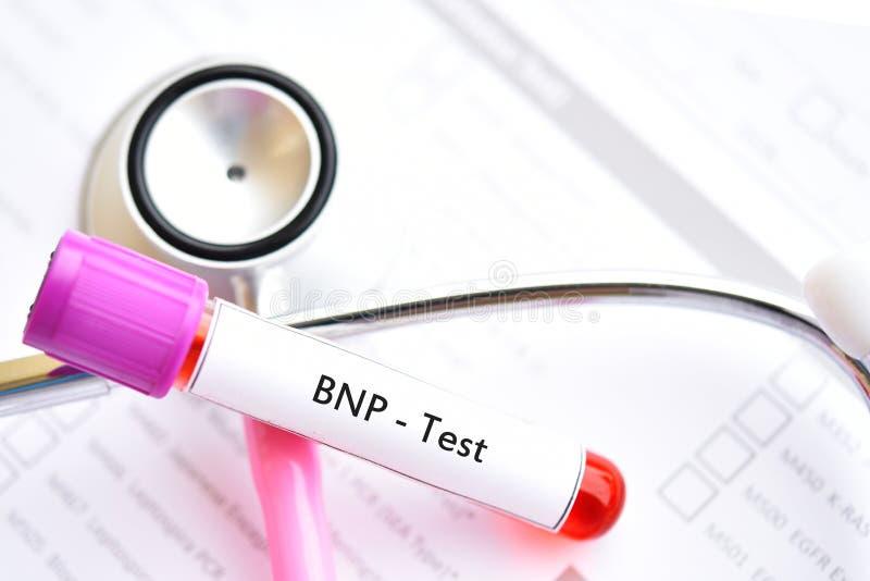 Blodprövkopia för BNP-prov fotografering för bildbyråer