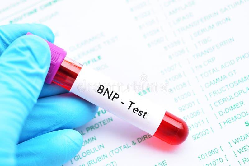 Blodprövkopia för BNP-prov arkivfoton