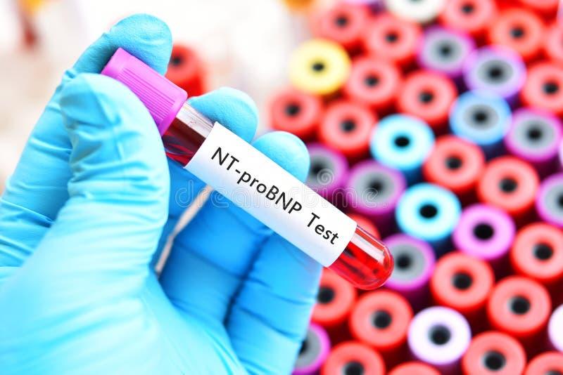 Blodprövkopia för det NT-proBNP provet royaltyfri foto