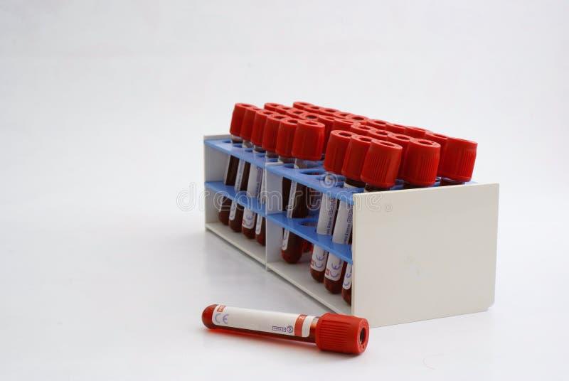 blodprovrör arkivfoton