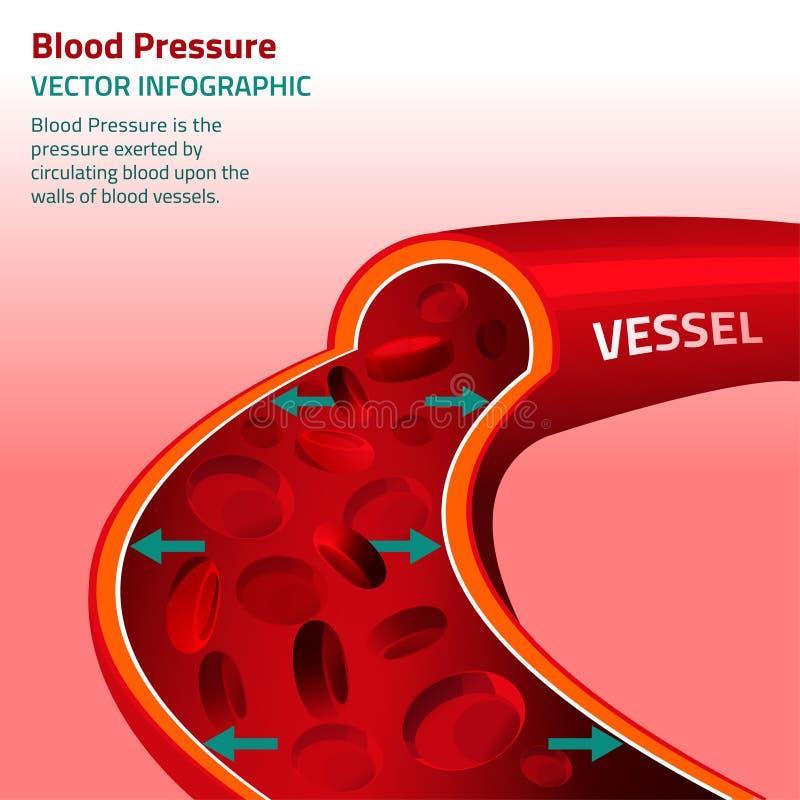 Blodtryck Infographic stock illustrationer
