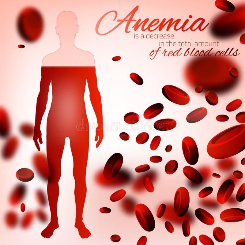 Bloedarmoede en Hemofilieachtergrond stock illustratie