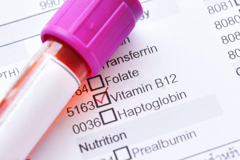 Bloedmonster voor vitamineb12 test royalty-vrije stock foto