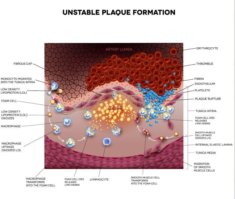 Bloedprop, bloedstolsel, onstabiele plaque royalty-vrije illustratie