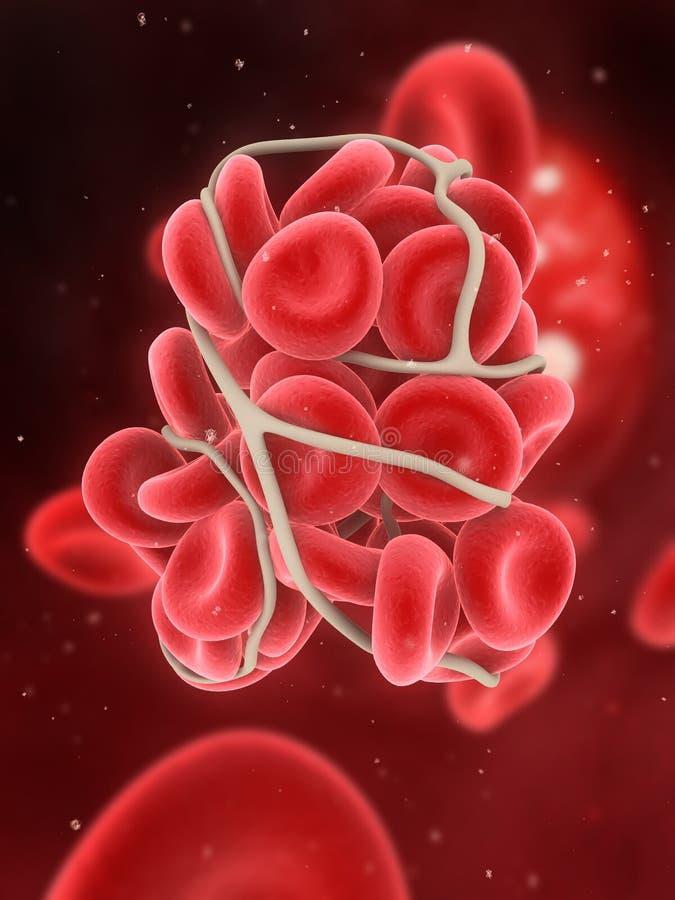 Bloedstolsel vector illustratie
