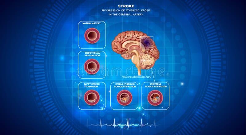 Bloedstolsel in de hersenen royalty-vrije illustratie
