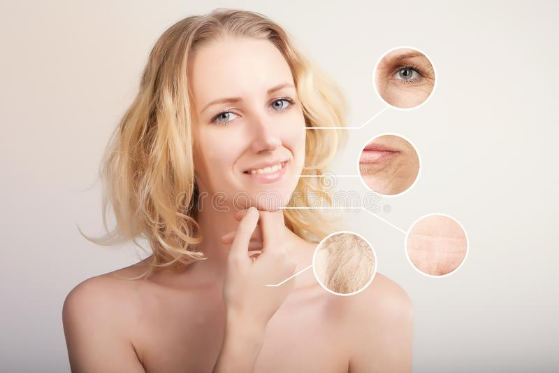 Blond caucasian woman demonstrating skin lifting procedure stock photos
