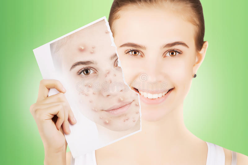Blond woman releases her skin fron pimples. Young blond woman releases her skin fron pimples stock photos