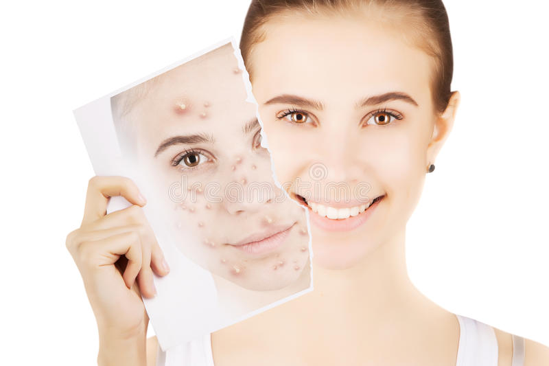 Blond woman releases her skin fron pimples. Young blond woman releases her skin fron pimples stock photography
