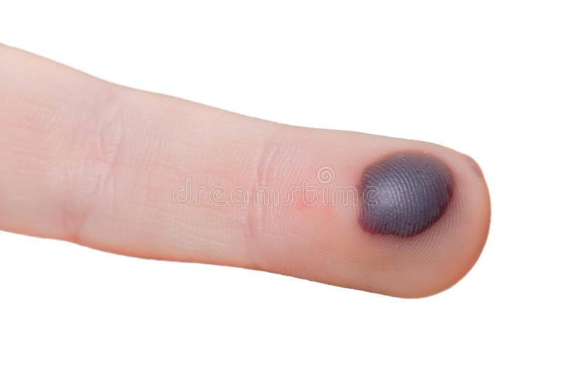 Blood blister. On a finger isolated on white background stock photography