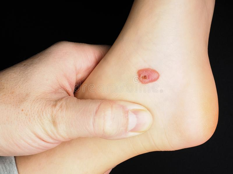 Download Blood blister on foot stock photo. Image of examine - 105720960
