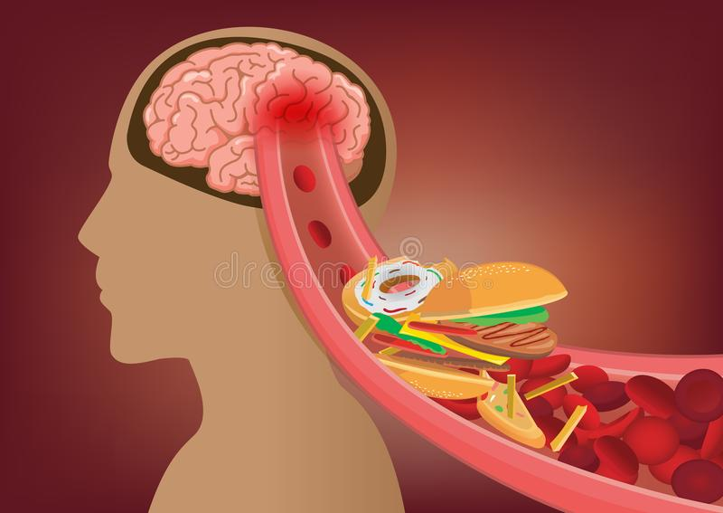 Blood can`t flow into human brain because fast food made clogged arteries. Illustration about stoke disease and medical concept stock illustration
