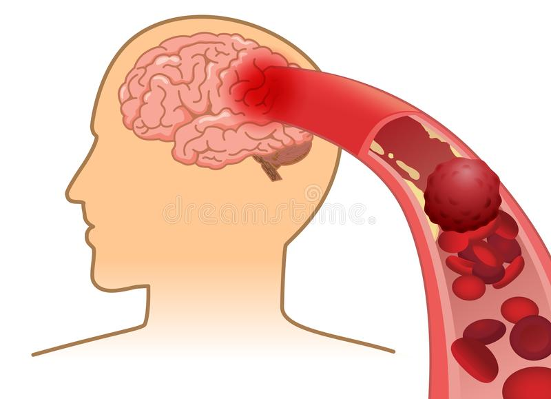Blood cell can`t flow into human brain because clogged arteries by blood clot. Illustration about Stroke and medical concept vector illustration