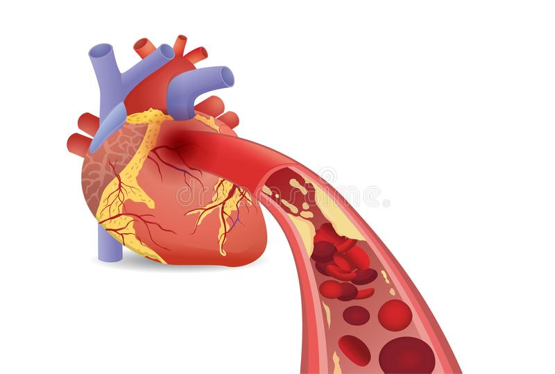 Blood cell can`t flow into human heart because clogged arteries by fatty. stock illustration