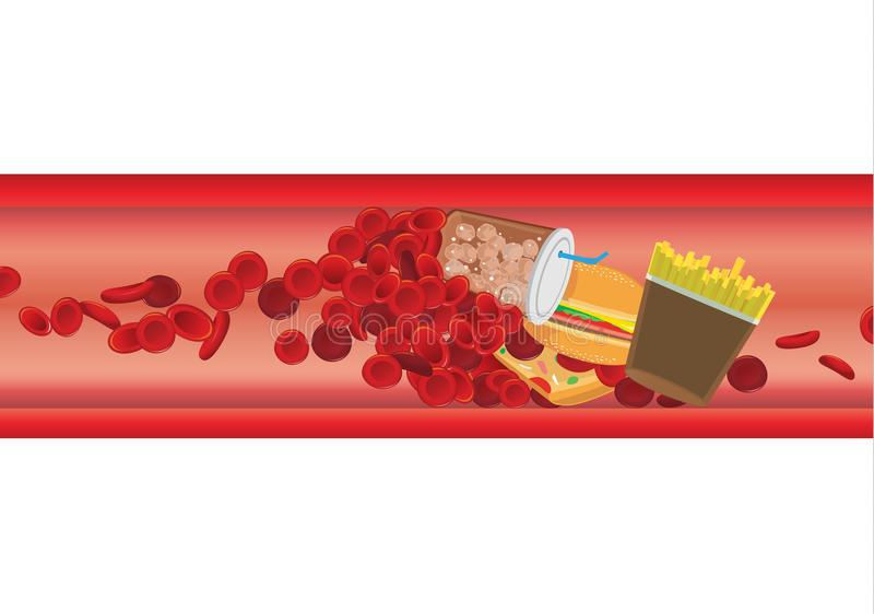 Blood cell in vessel is blocked by high fat foods. vector illustration
