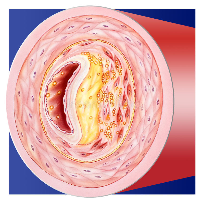 Blood - Clogged Vessel. A clogged blood vessel, cutaway cross section. When cholesterol levels are high, atherosclerotic plaque buildup leads to vessel blockage royalty free stock photos