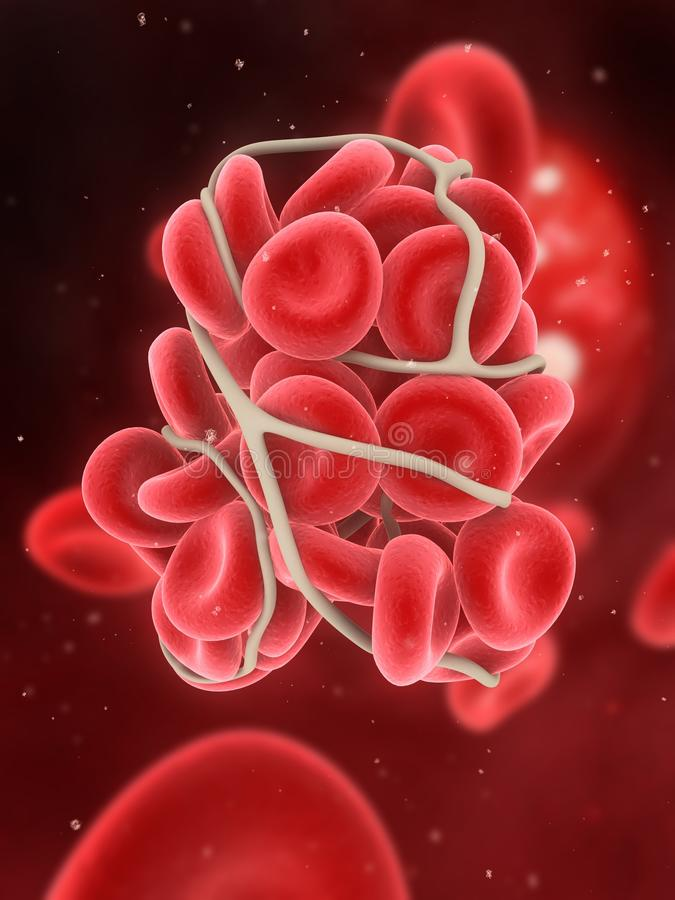 Blood clot. 3d rendered illustration of a blood clot in an artery vector illustration