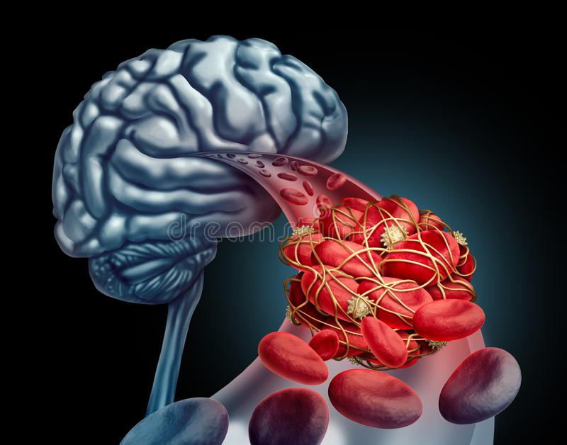 Blood Clot Brain. Medical concept as 3D illustration blood cells blocked by an artery blockage thrombus causing a blockage of blood flow to the neurology vector illustration