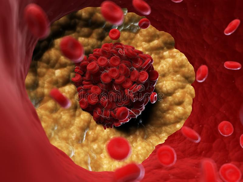 A blood clot. 3d rendered, medically accurate illustration of a blood clot vector illustration