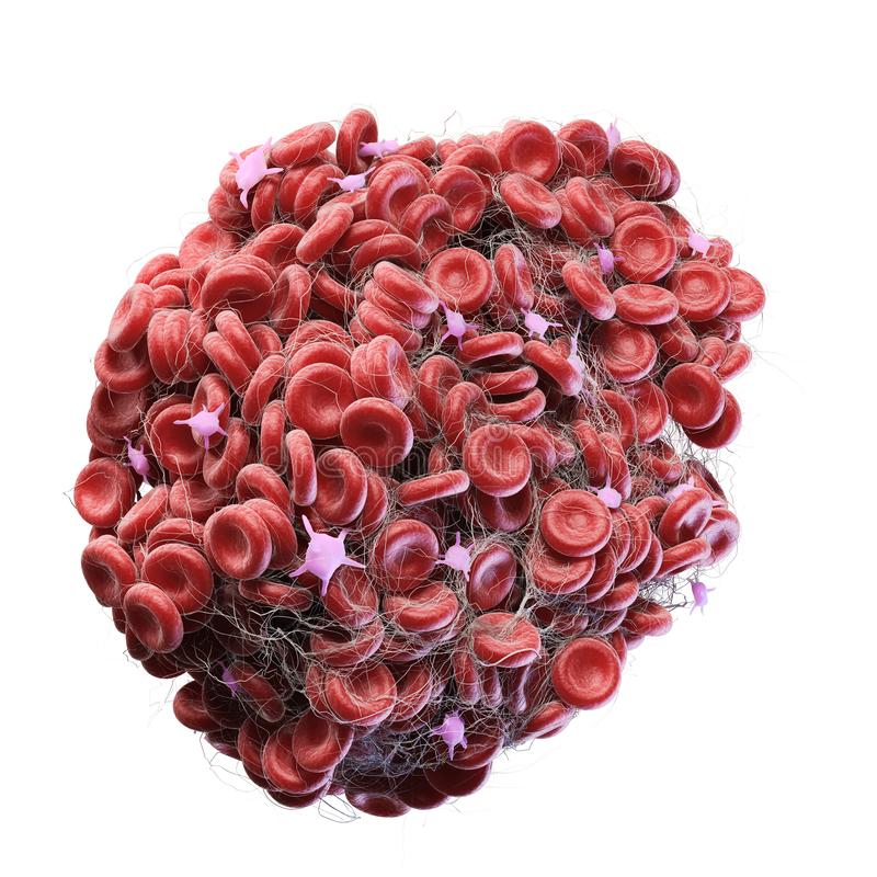 A blood clot. 3d rendered medically accurate illustration of a blood clot royalty free illustration