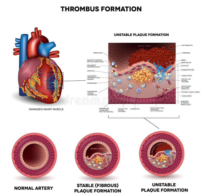 Blood clot formation. Coronary artery disease. Anatomy of Healthy artery, unhealthy arteries, human heart muscle damage and detailed illustration of plaque vector illustration