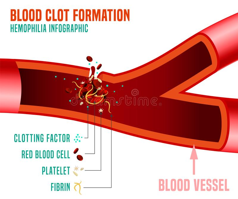 Blood clot formation. Hemophlia infographic facts. Editable vector illustration in bright colors isolated on a dark grey background. Medical, healthcare and stock illustration