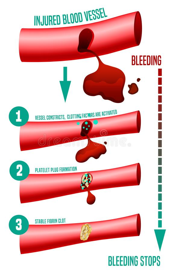 Blood clot formation. Medical infographic facts. Editable vector illustration in bright colors isolated on a white background. Healthcare and scientific vector illustration