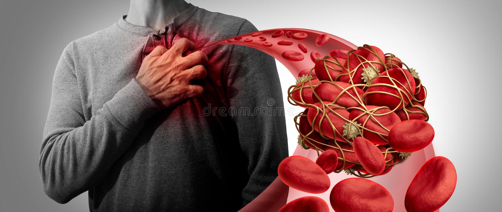 Blood Clot Health Risk. Or thrombosis medical illustration symbol as a group of human blood cells clumped together by sticky platelets and fibrin as a blockage royalty free illustration