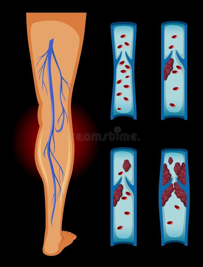 Blood clot in human leg. Illustration vector illustration