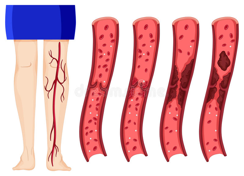 Blood clot in human legs. Illustration (deep vein thombosis vector illustration