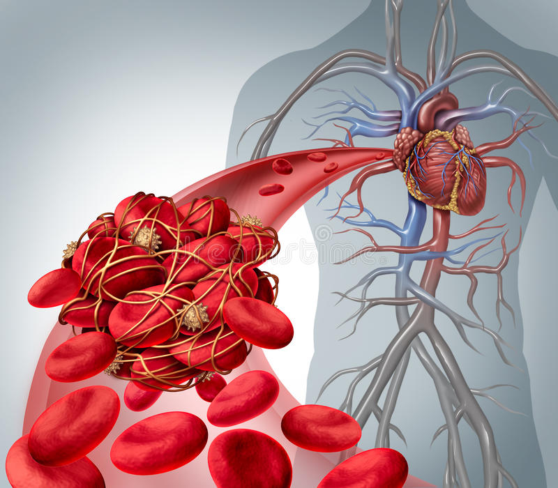 Blood Clot Risk. And clot or thrombosis medical illustration symbol as a group of human blood cells clumped together by sticky platelets and fibrin creating a stock illustration