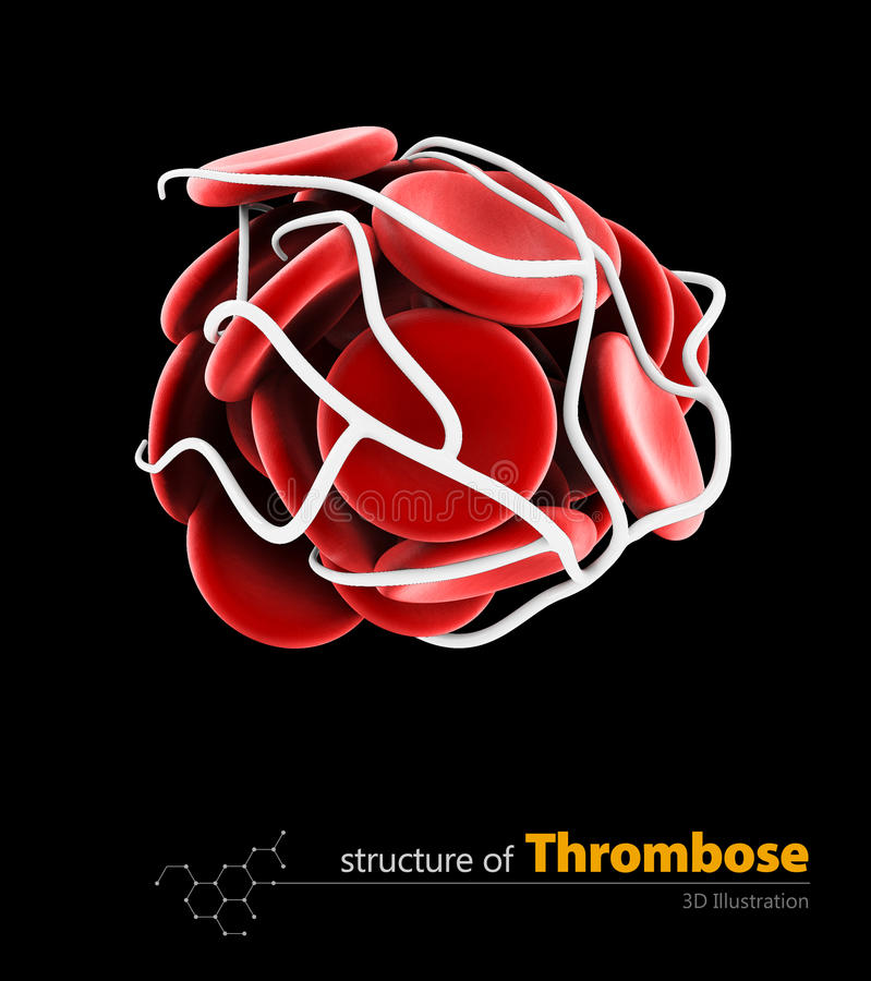 Blood clot and thrombosis medical 3d illustration concept. isolated black. Blood clot and thrombosis medical 3d illustration concept. isolated vector illustration