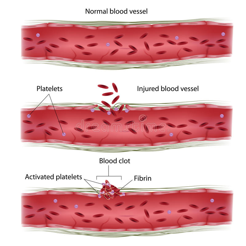 Blood clotting process royalty free illustration