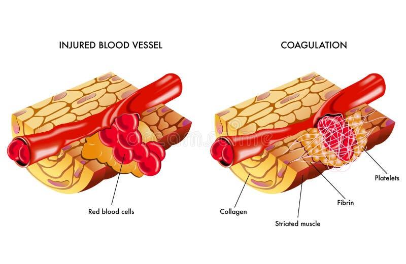 Blood coagulation stock illustration
