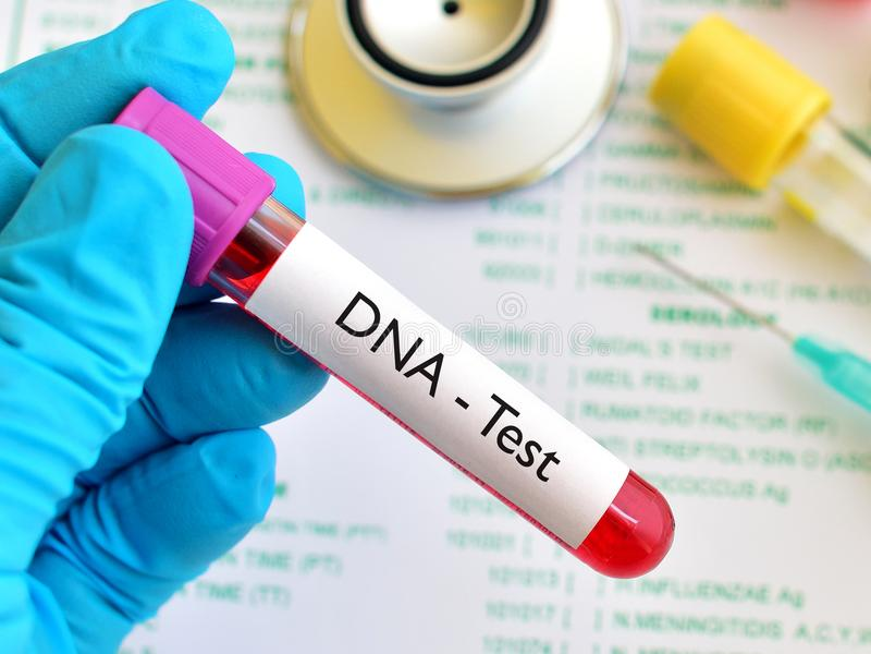 Blood for DNA test. Blood sample for DNA test royalty free stock image