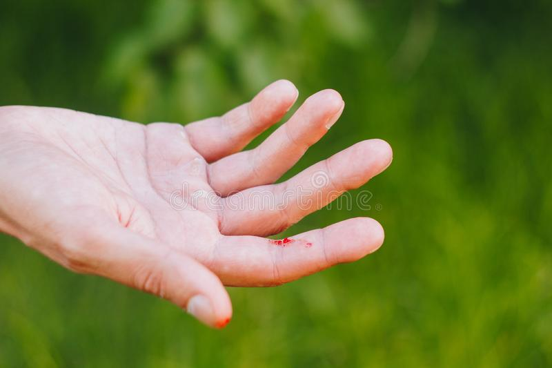 Blood on a finger on a blurred green background of grass and trees. Callous hand of a hard worker. Close-up. callus on hand royalty free stock photography