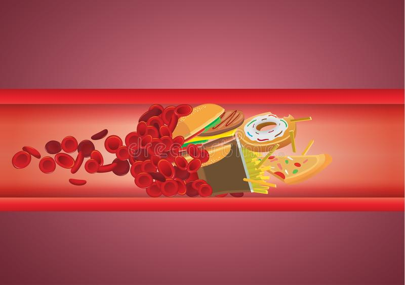 Blood flow blocked from fast food which have high fat and cholesterol. stock illustration