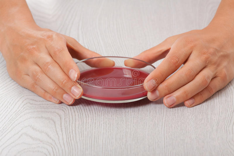 Download Blood in petri dishes stock photo. Image of dishes, microbiology - 32600418