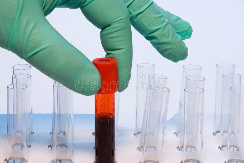 Blood Sample Stock Photography