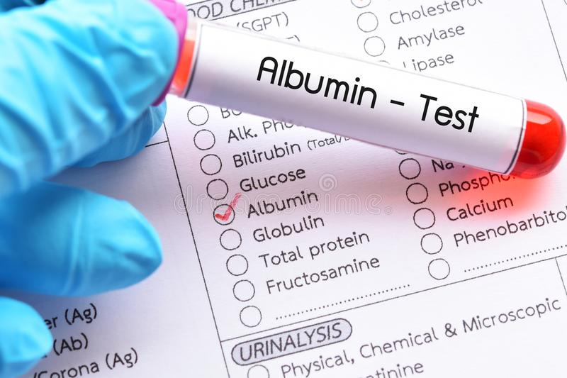 Blood sample for albumin test. Diagnosis for liver function test stock images
