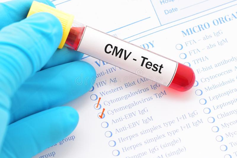 CMV test. Blood sample for Cytomegalovirus test royalty free stock images