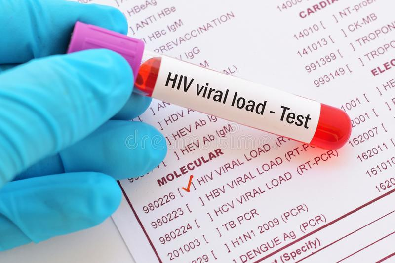 HIV viral load test. Blood sample for HIV viral load test royalty free stock image