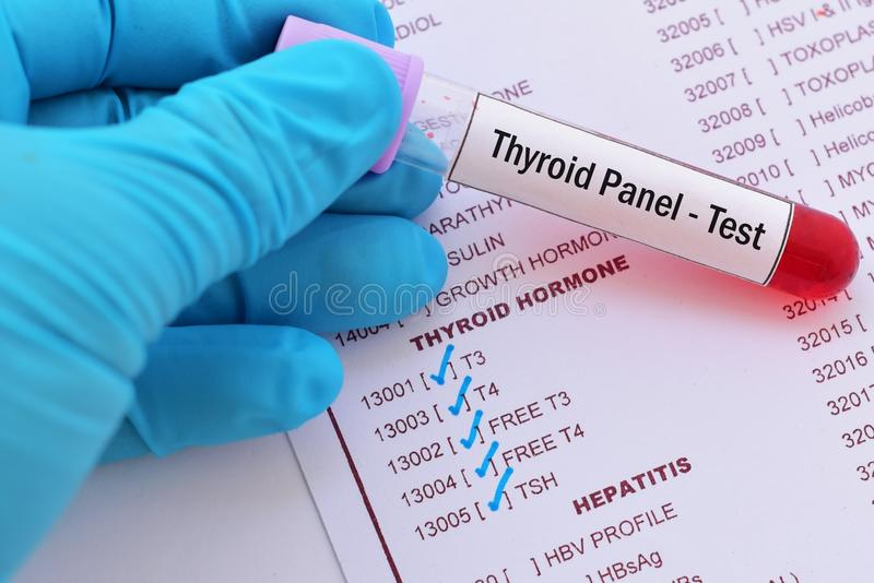 Blood sample for thyroid panel test. Blood sample with requisition form for thyroid panel test stock photos