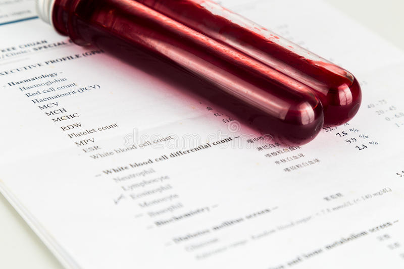 Blood sample in test tubes with health analysis screening report.  royalty free stock image