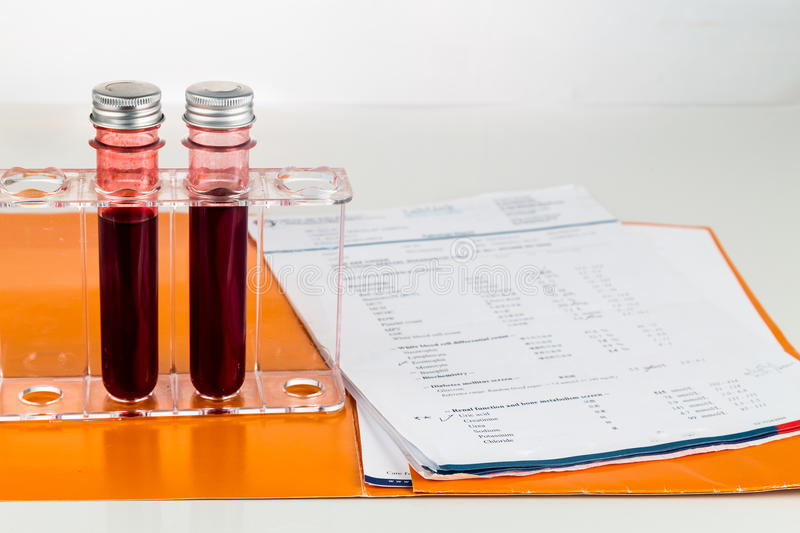 Blood sample in test tubes with health analysis screening report.  royalty free stock photos