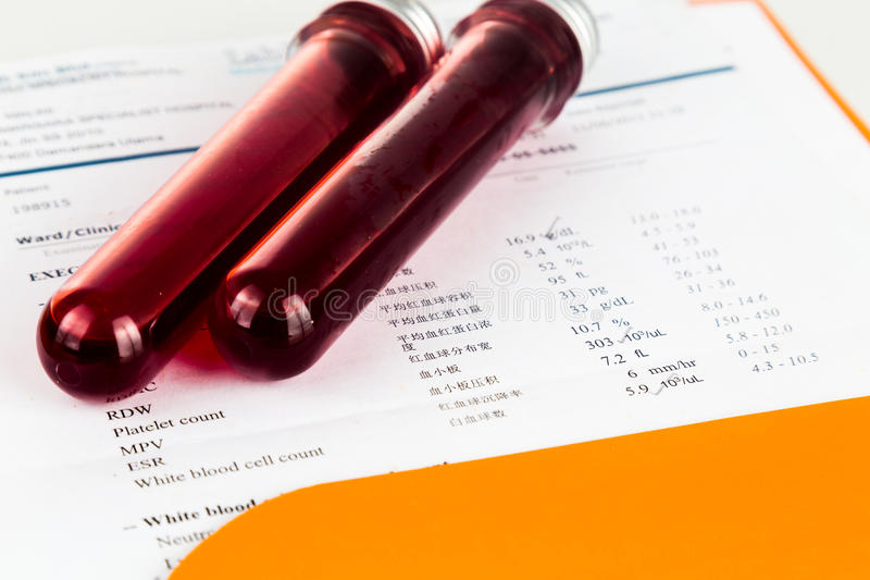Blood sample in test tubes with health analysis screening report.  stock photo