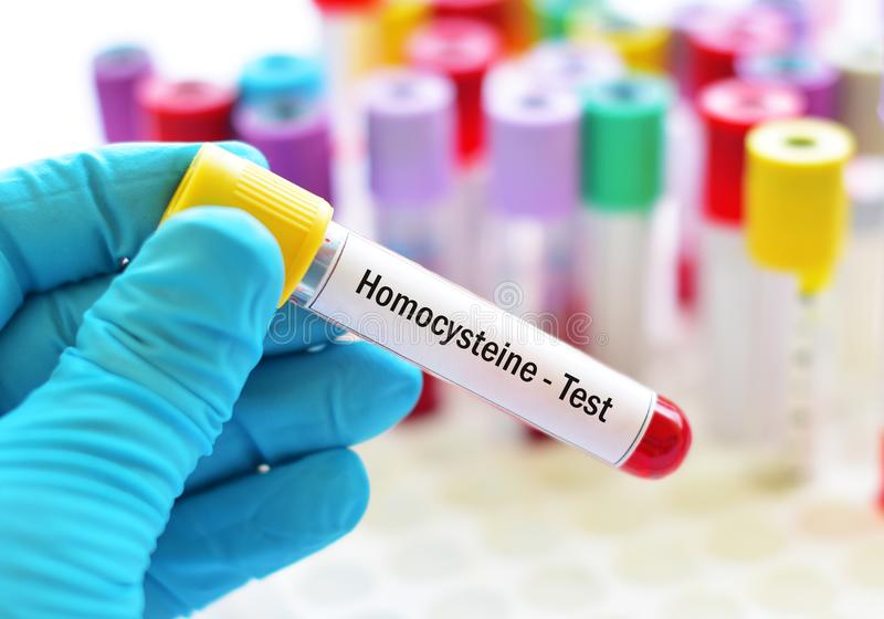 Blood sample tube for homocysteine test. Diagnosis for heart disease royalty free stock images