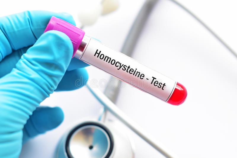 Blood sample tube for homocysteine test royalty free stock photos