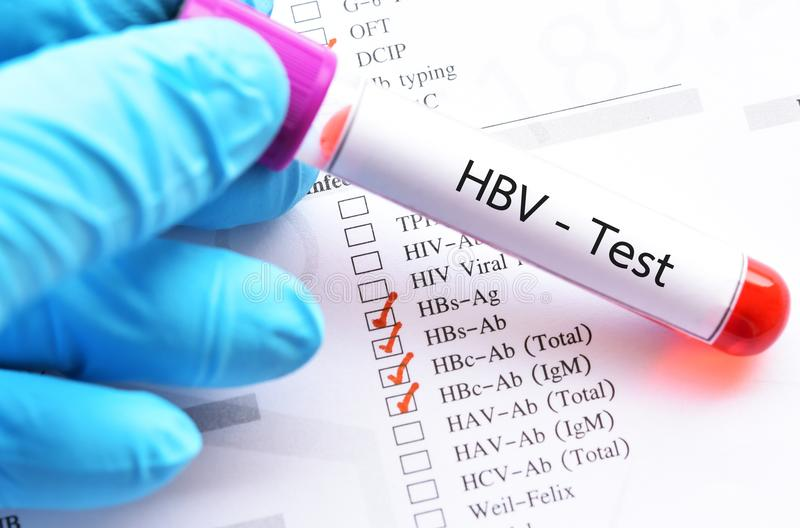 Blood sample tube for HBV profile test. Blood sample tube with laboratory requisition form for HBV profile test royalty free stock photography